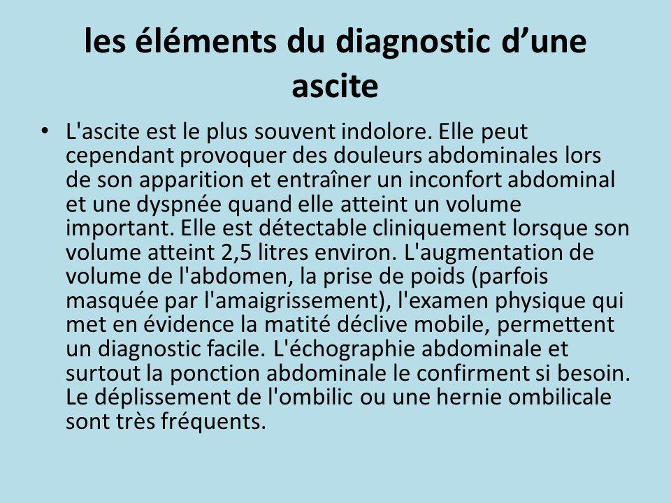 les éléments du diagnostic d'une ascite