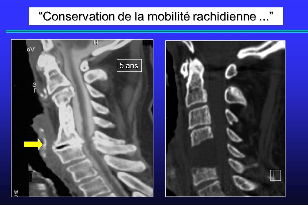 Conservation de la mobilité rachidienne ...