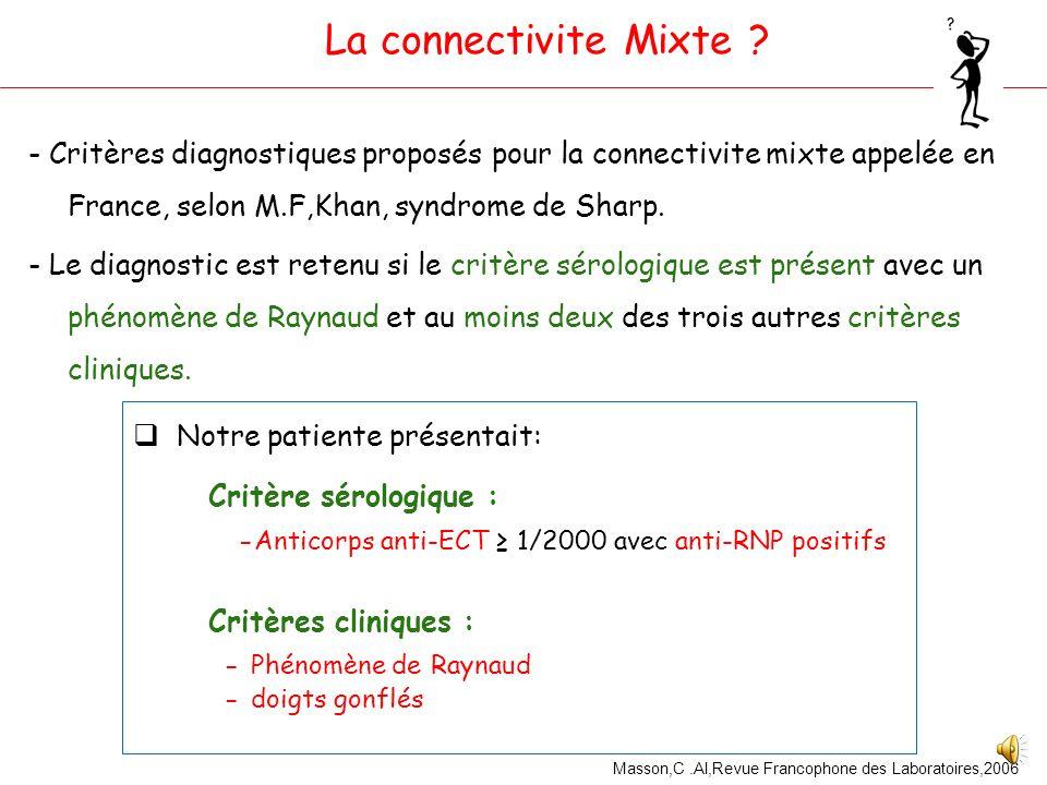 La connectivite Mixte Critères cliniques : - Phénomène de Raynaud