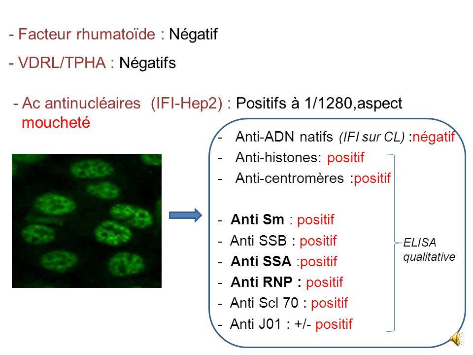 - Facteur rhumatoïde : Négatif - VDRL/TPHA : Négatifs