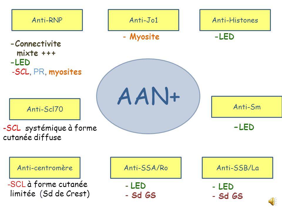 AAN+ - Myosite -Connectivite mixte +++ -LED -SCL, PR, myosites -LED
