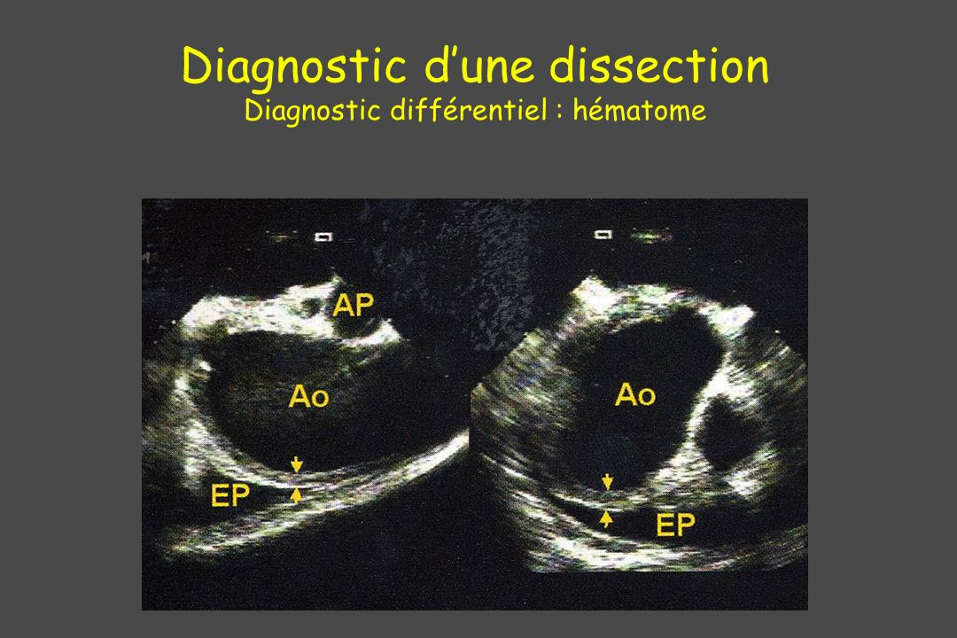 Diagnostic d'une dissection Diagnostic différentiel : hématome