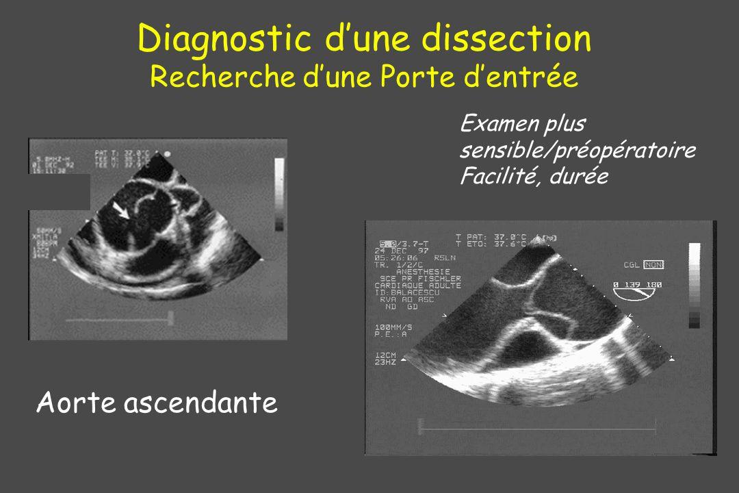 Diagnostic d'une dissection Recherche d'une Porte d'entrée