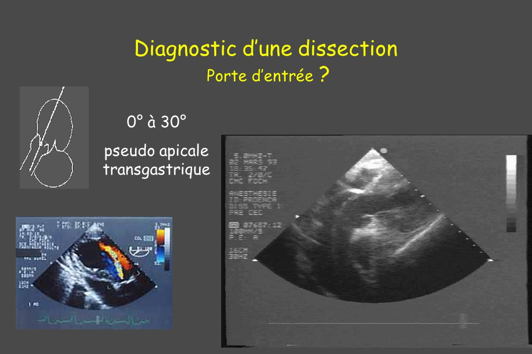 Diagnostic d'une dissection Porte d'entrée