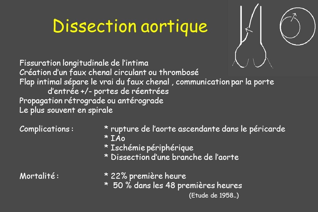 Dissection aortique Fissuration longitudinale de l'intima