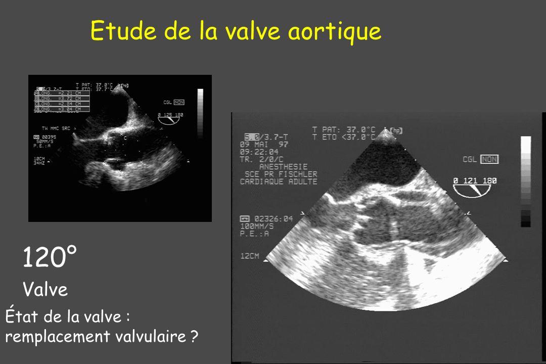 Etude de la valve aortique