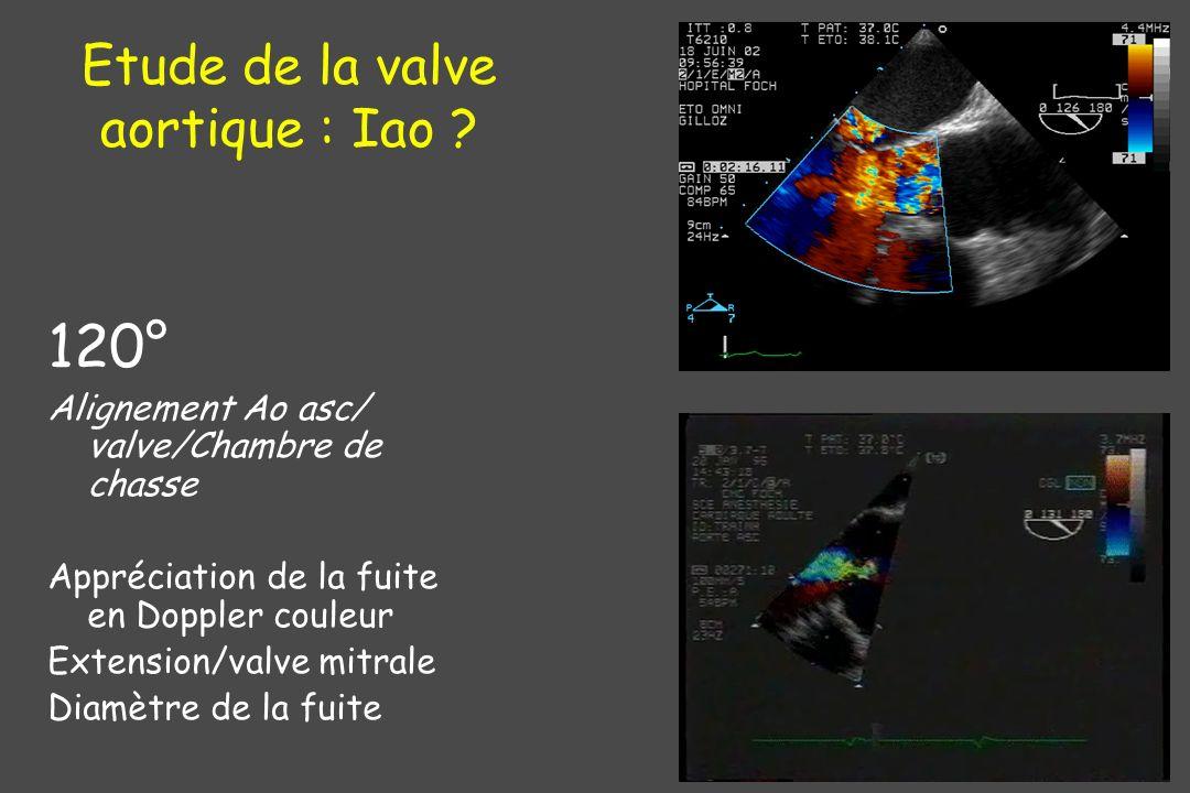 Etude de la valve aortique : Iao