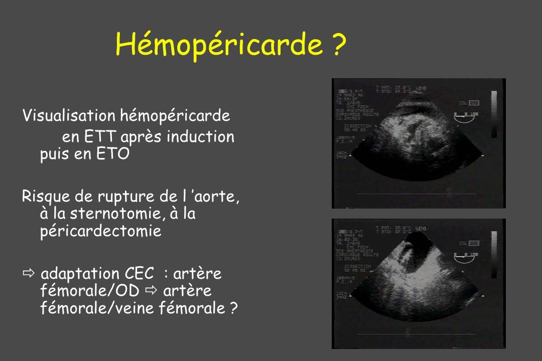 Hémopéricarde Visualisation hémopéricarde
