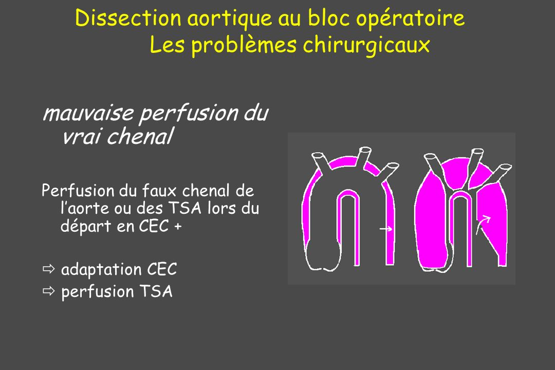 Dissection aortique au bloc opératoire Les problèmes chirurgicaux