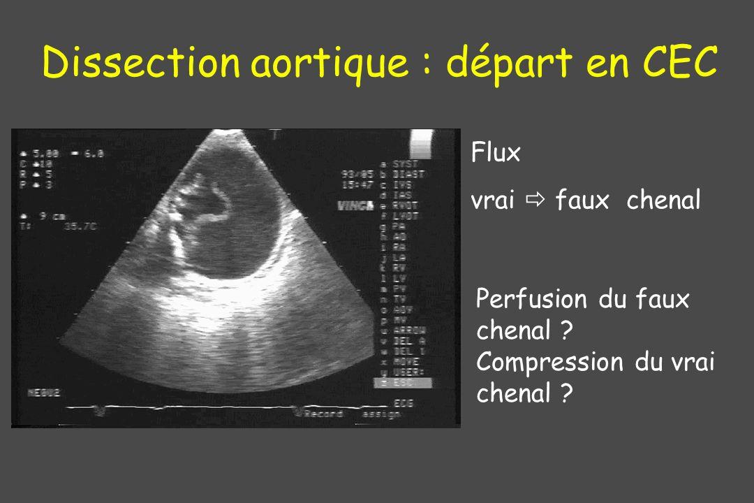 Dissection aortique : départ en CEC
