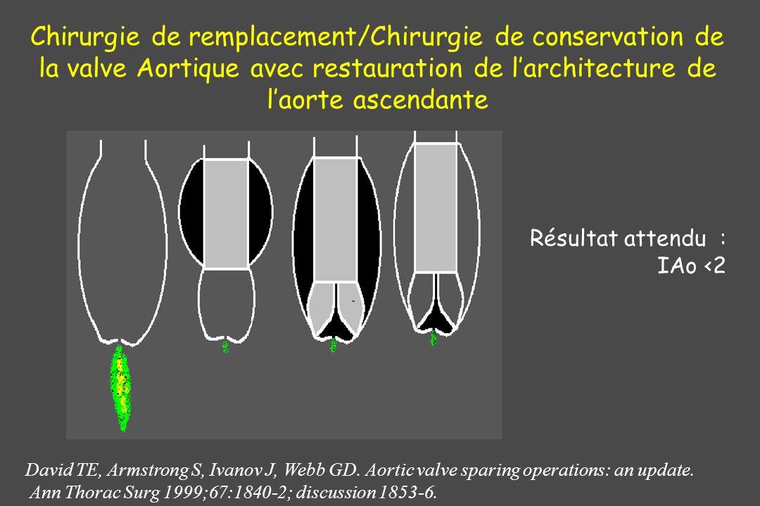 Chirurgie de remplacement/Chirurgie de conservation de la valve Aortique avec restauration de l'architecture de l'aorte ascendante