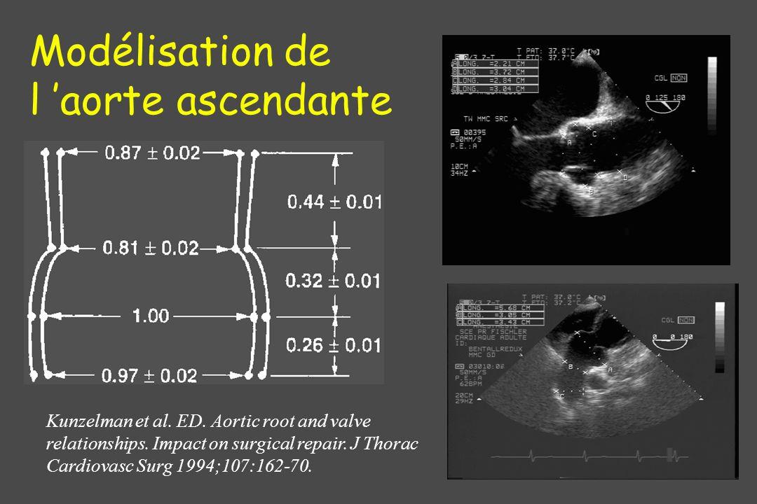Modélisation de l 'aorte ascendante