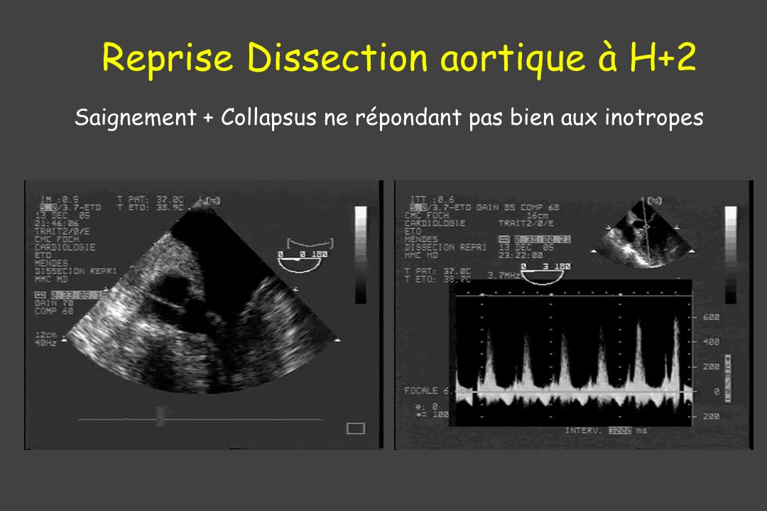 Reprise Dissection aortique à H+2
