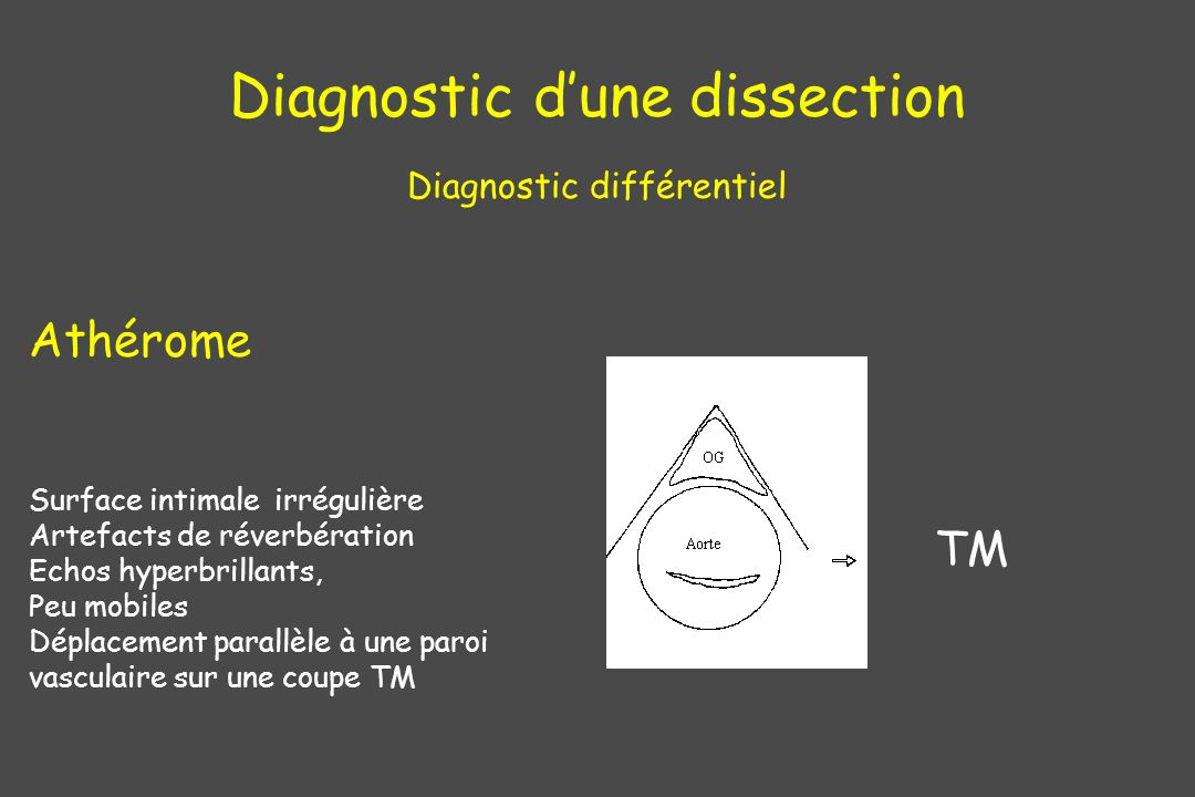 Diagnostic d'une dissection Diagnostic différentiel