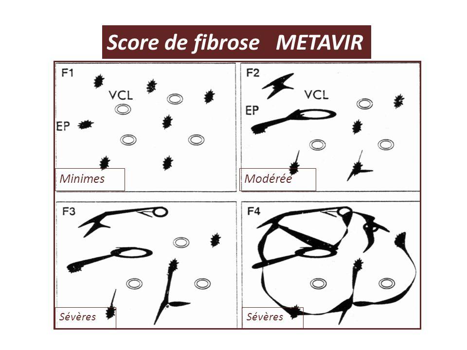 Score de fibrose METAVIR
