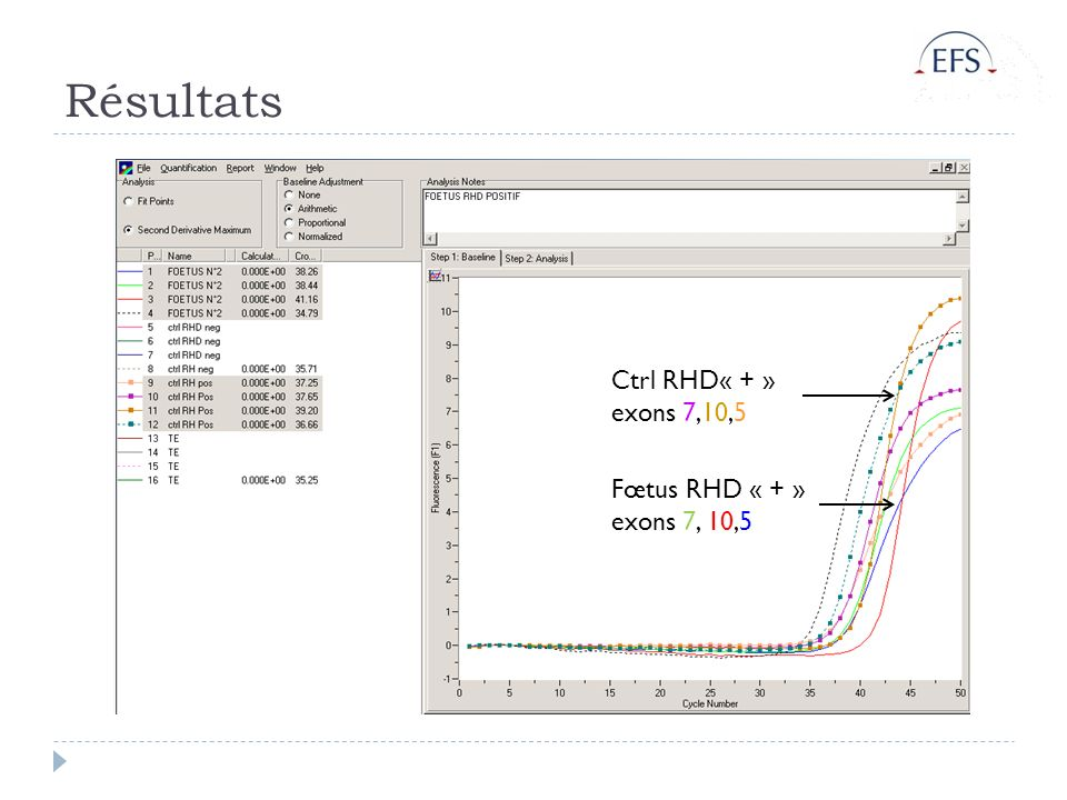 Résultats Ctrl RHD« + » exons 7,10,5 Fœtus RHD « + » exons 7, 10,5