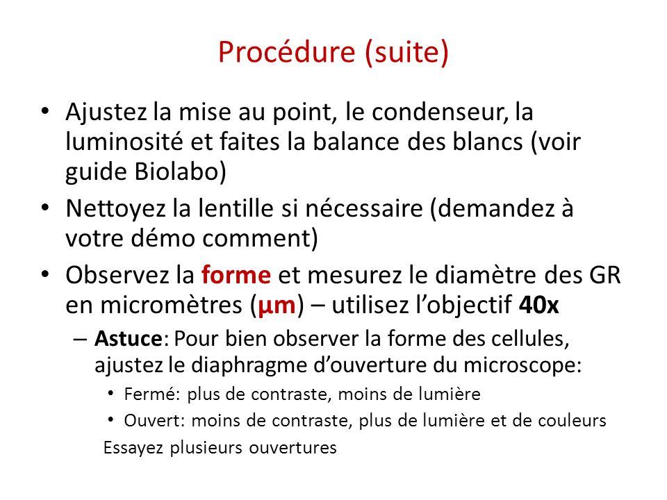 Procédure (suite) Ajustez la mise au point, le condenseur, la luminosité et faites la balance des blancs (voir guide Biolabo)