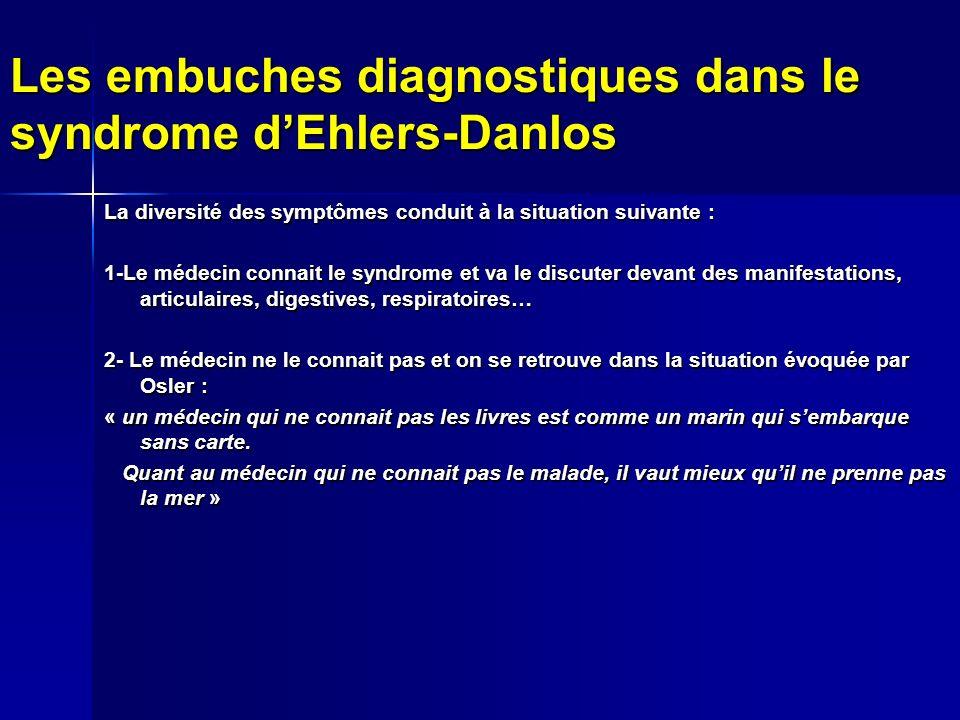 Les embuches diagnostiques dans le syndrome d'Ehlers-Danlos