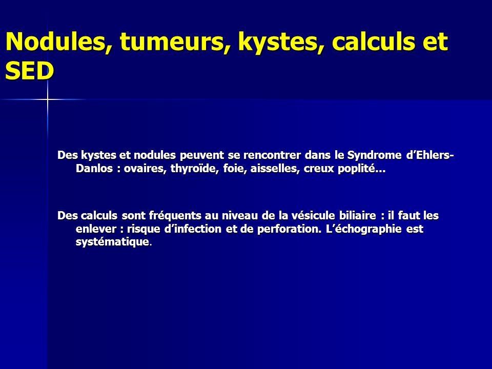 Nodules, tumeurs, kystes, calculs et SED