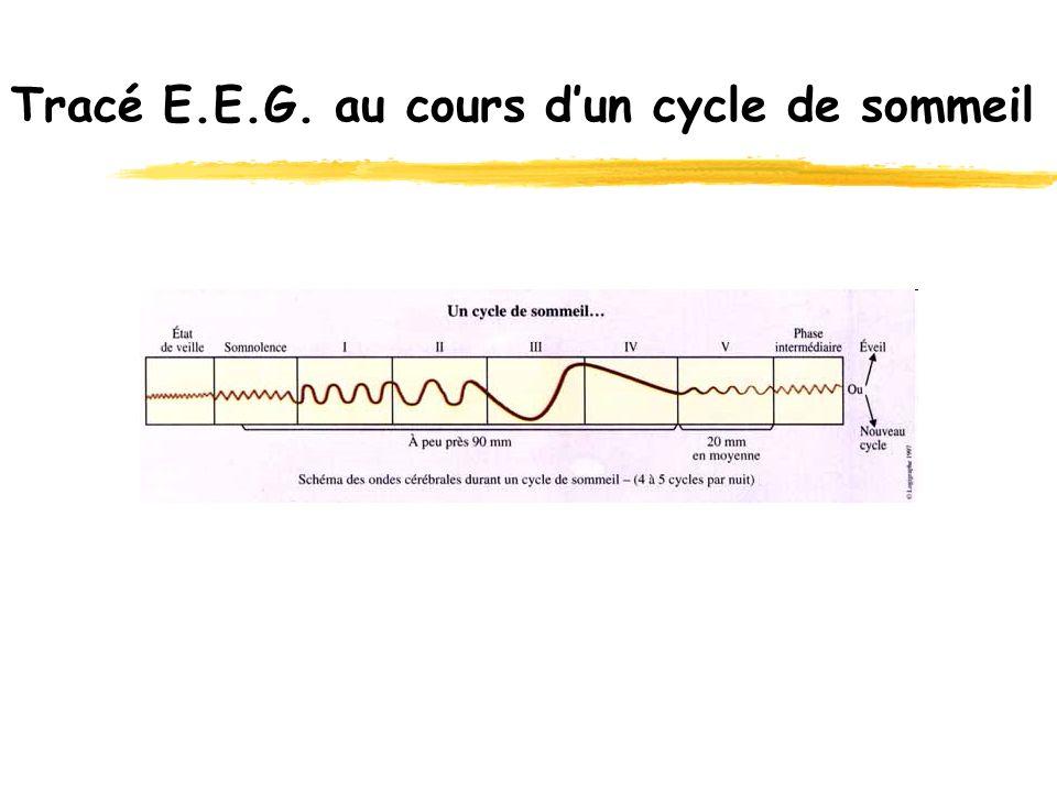 Tracé E.E.G. au cours d'un cycle de sommeil