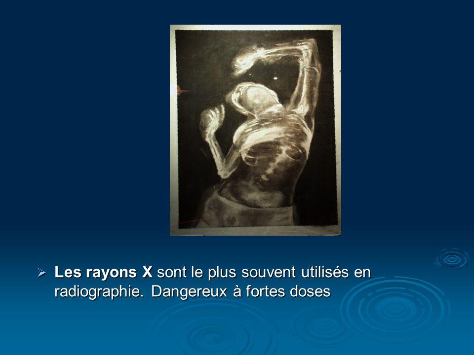 Les rayons X sont le plus souvent utilisés en radiographie