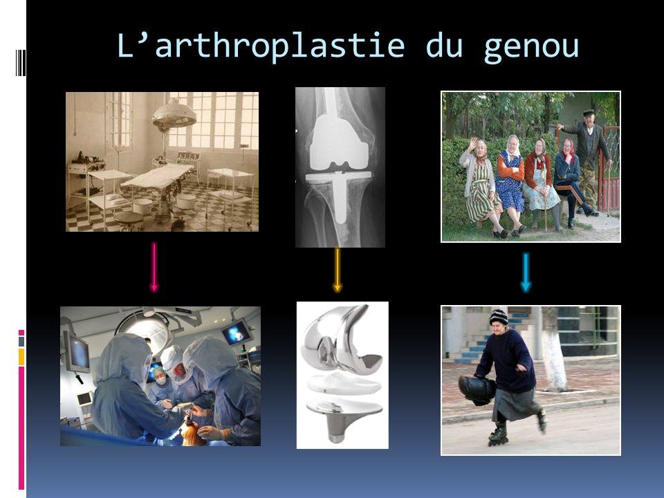 L'arthroplastie du genou