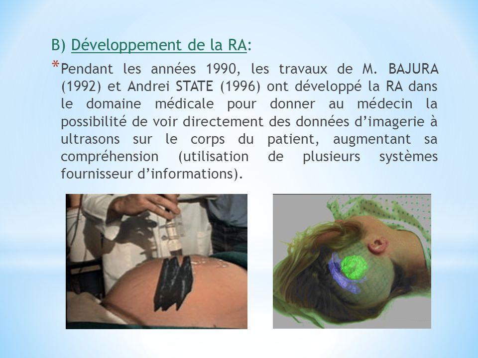 B) Développement de la RA: