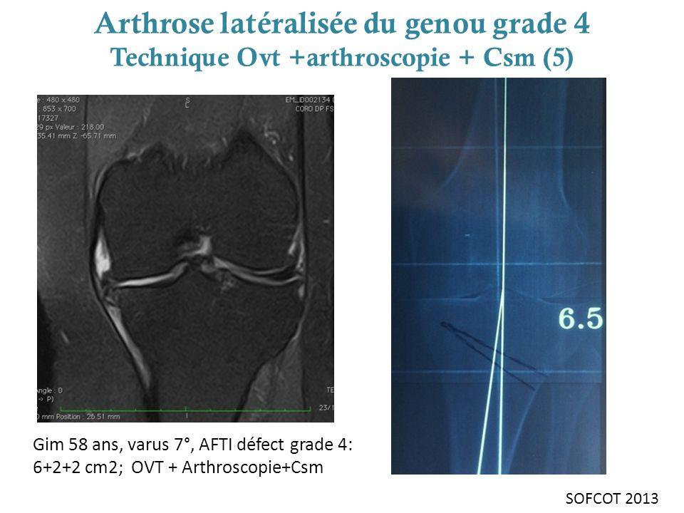 Arthrose latéralisée du genou grade 4 Technique Ovt +arthroscopie + Csm (5)