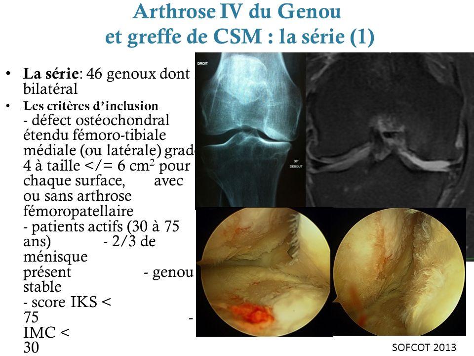 Arthrose IV du Genou et greffe de CSM : la série (1)