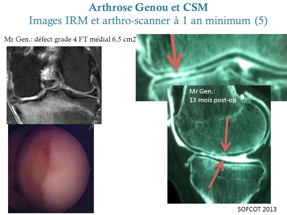 Arthrose Genou et CSM Images IRM et arthro-scanner à 1 an minimum (5)