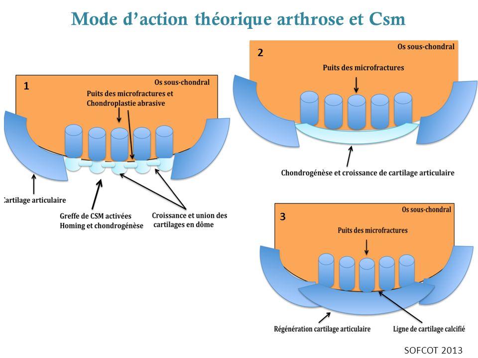 Mode d'action théorique arthrose et Csm