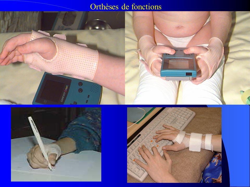 Orthèses de fonctions