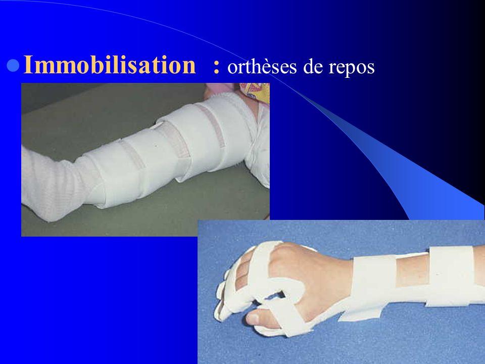 Immobilisation : orthèses de repos