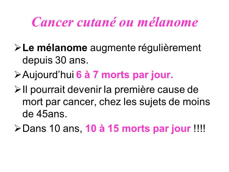 Cancer cutané ou mélanome