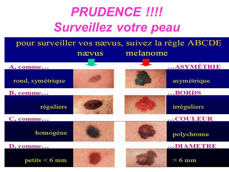 PRUDENCE !!!! Surveillez votre peau
