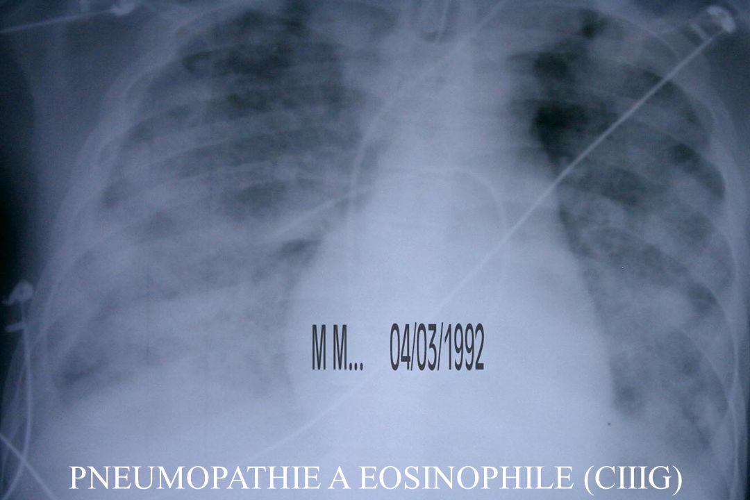 PNEUMOPATHIE A EOSINOPHILE (CIIIG)