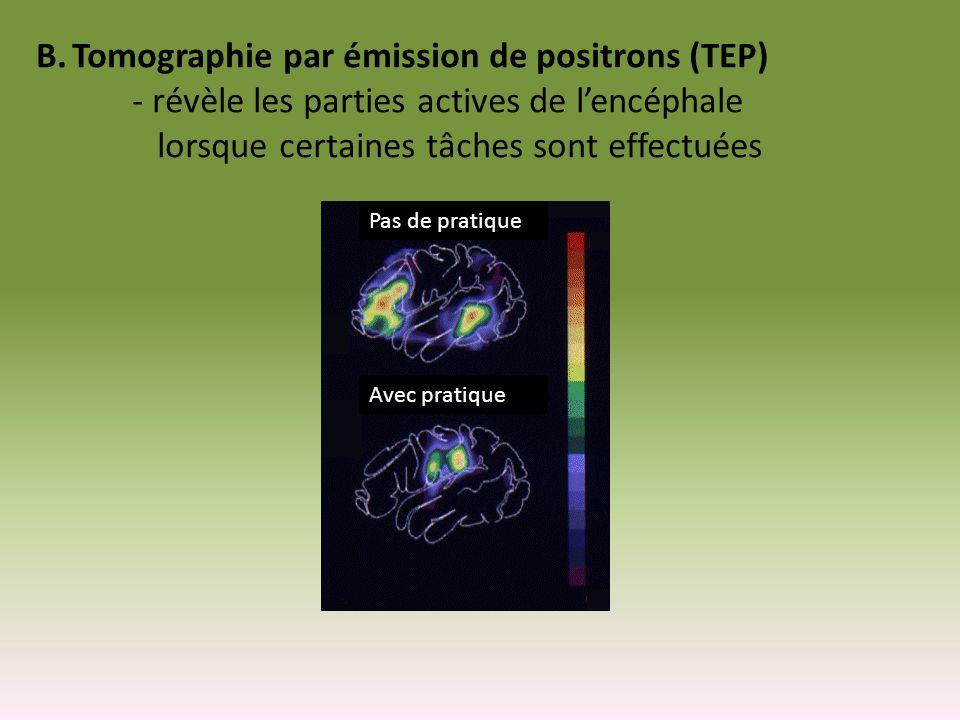 Tomographie par émission de positrons (TEP)