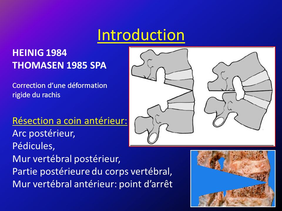 Introduction HEINIG 1984 THOMASEN 1985 SPA Résection a coin antérieur: