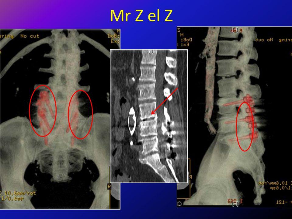 Mr Z el Z