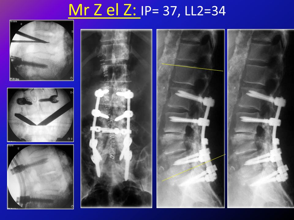 Mr Z el Z: IP= 37, LL2=34