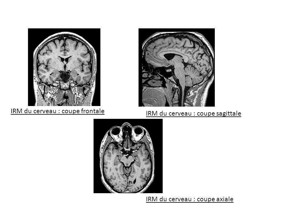 IRM du cerveau : coupe frontale
