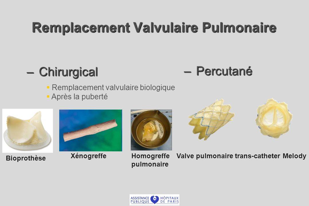 Remplacement Valvulaire Pulmonaire