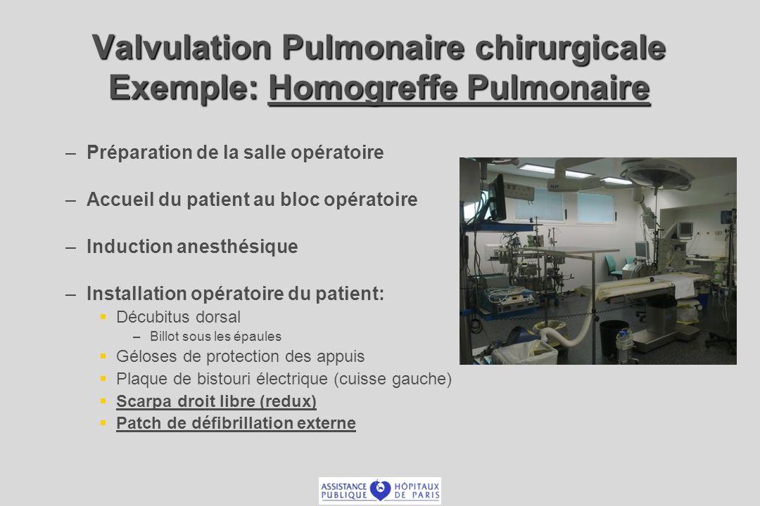 Valvulation Pulmonaire chirurgicale Exemple: Homogreffe Pulmonaire