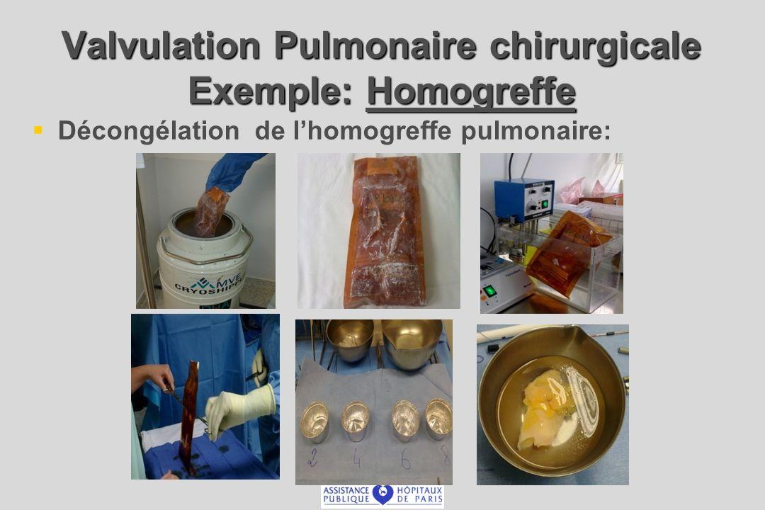 Valvulation Pulmonaire chirurgicale Exemple: Homogreffe
