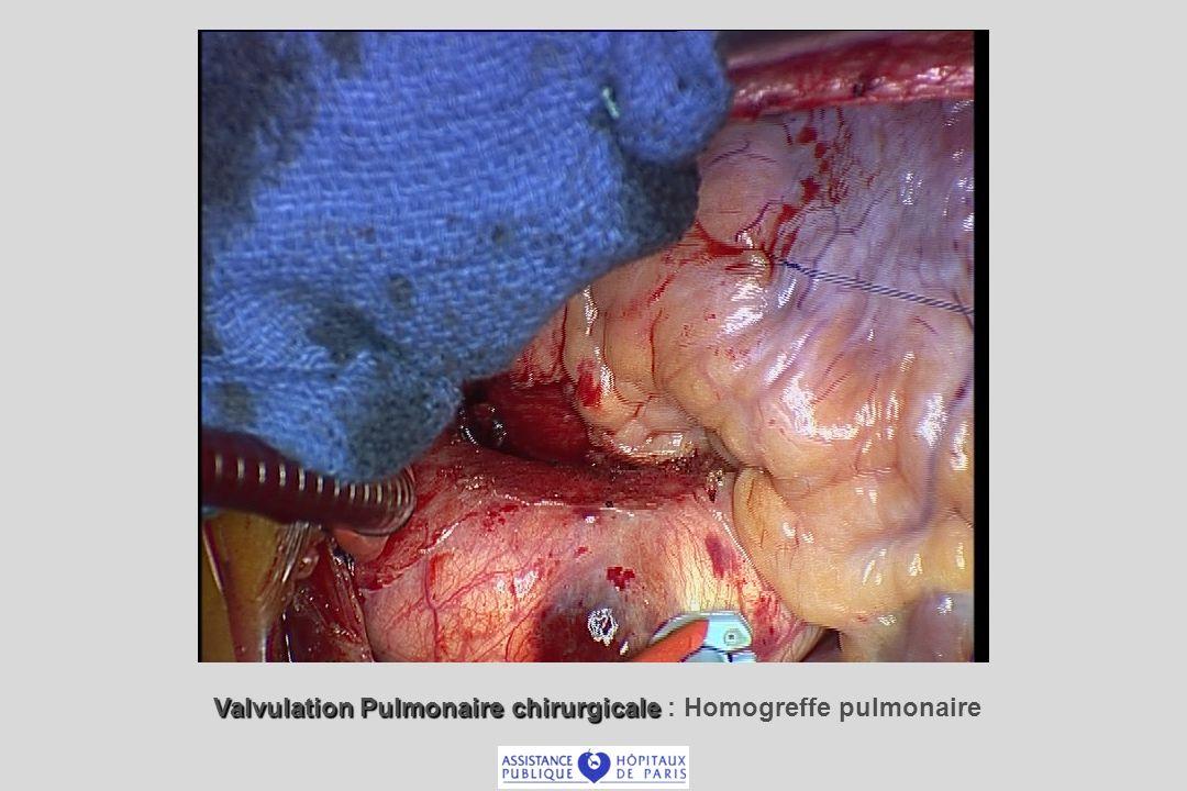 Valvulation Pulmonaire chirurgicale : Homogreffe pulmonaire