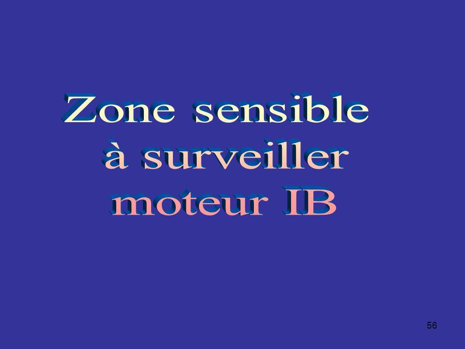 Zone sensible à surveiller moteur IB