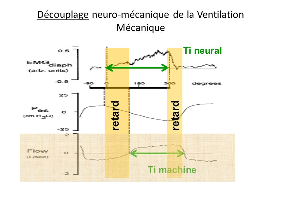 Découplage neuro-mécanique de la Ventilation Mécanique