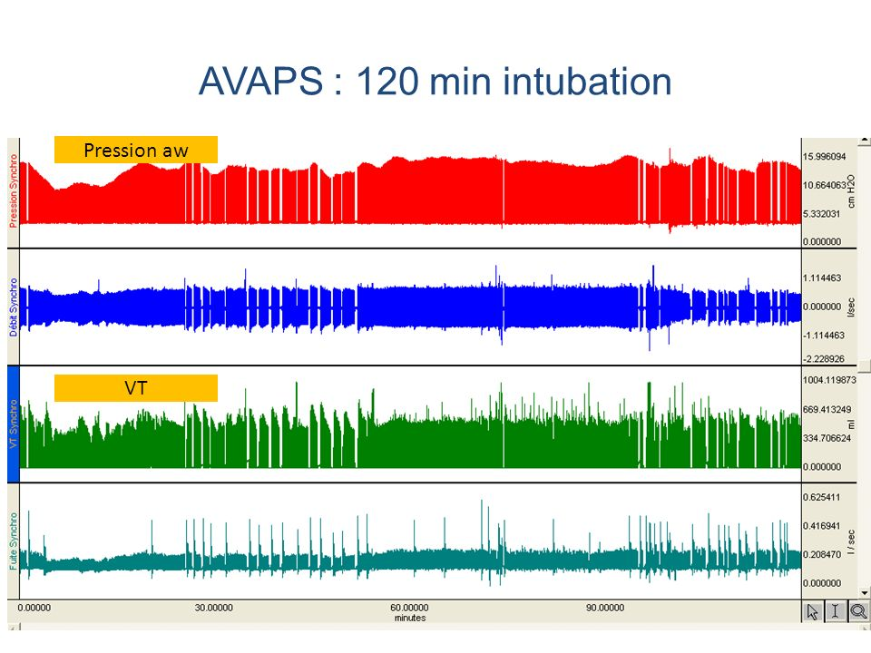 AVAPS : 120 min intubation Pression aw VT
