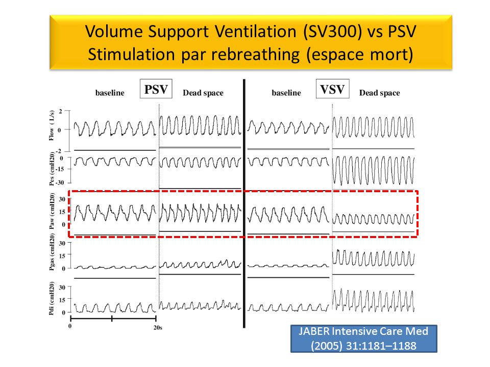 Volume Support Ventilation (SV300) vs PSV