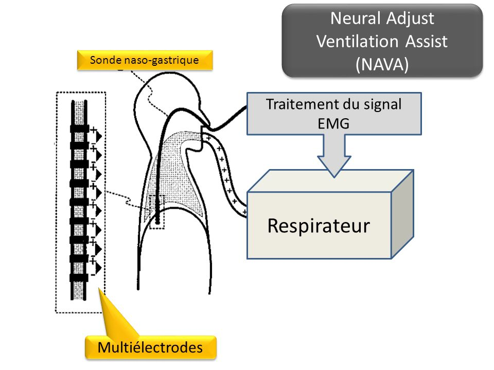 Respirateur Neural Adjust Ventilation Assist (NAVA)